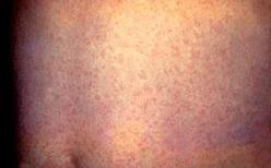 「風疹」キーワードでまとめ記事をアップ
