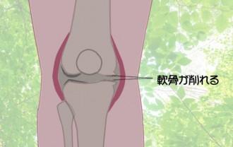 変形性膝関節症(背景あり最新)540